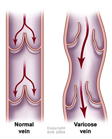Varicose Veins - Symptoms, Causes, & Treatment
