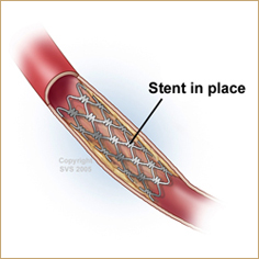 Carotid Artery Stenting - Treatment for Carotid Artery Disease